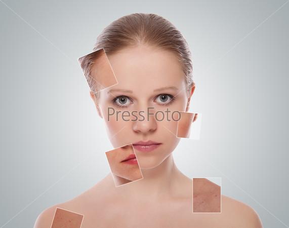 Лечение и уход за кожей