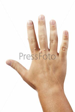 Бородавки на руке на белом фоне