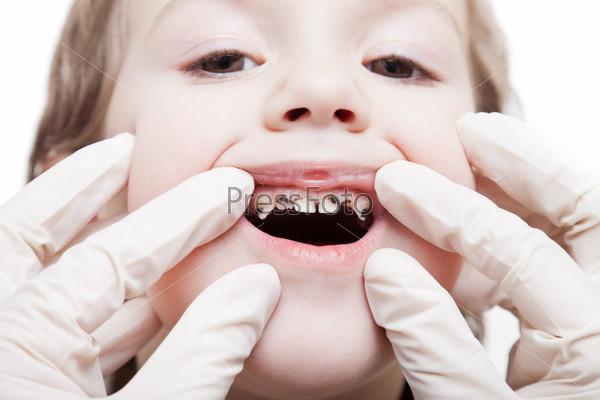 Медицинский осмотр пациента стоматологом - черные кариозные зубы