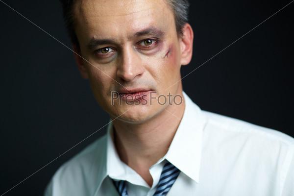 Избитый бизнесмен