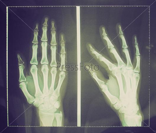 Медицинская рентгенография пальцев рук